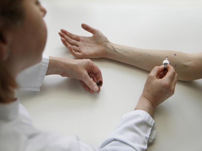 Allergiediagnostik mit dem Pricktest