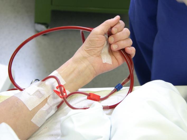 Dialyse Arm von Patientin mit Blut gefüllten Schläuchen