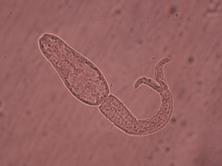 Schistosoma mansoni zelle