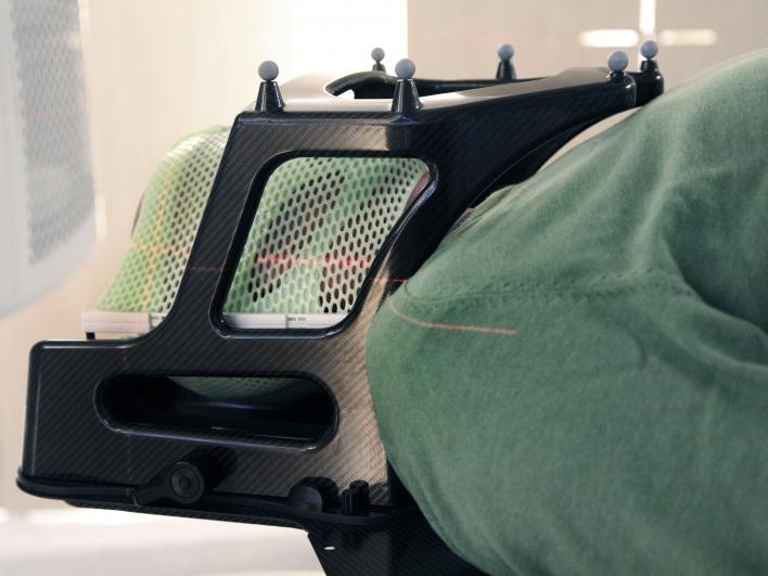 Stereotaktische Strahlentherapie